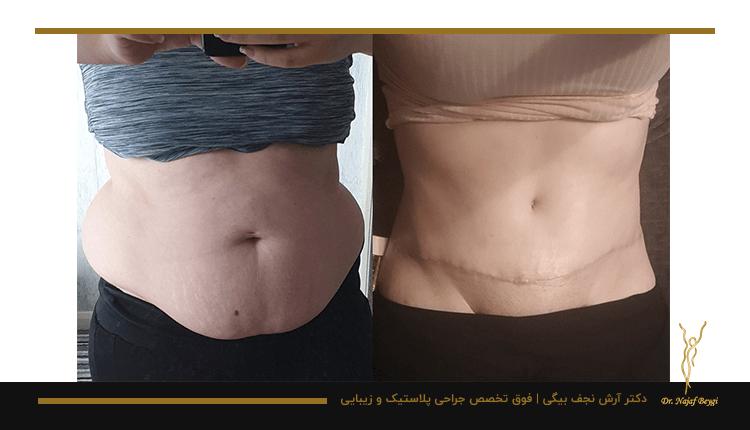 قبل و بعد از عمل بیرون کشیدن چربی بدن