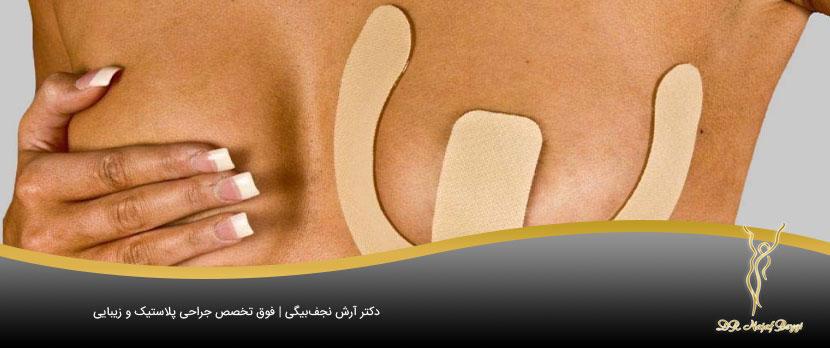 جای زخم ایجاد شده بر روی سینه بعد از انجام جراحی سینه
