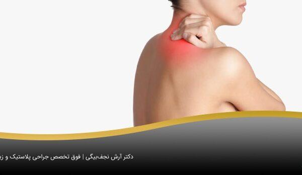 گردندرد به دلیل سنگینی سینه