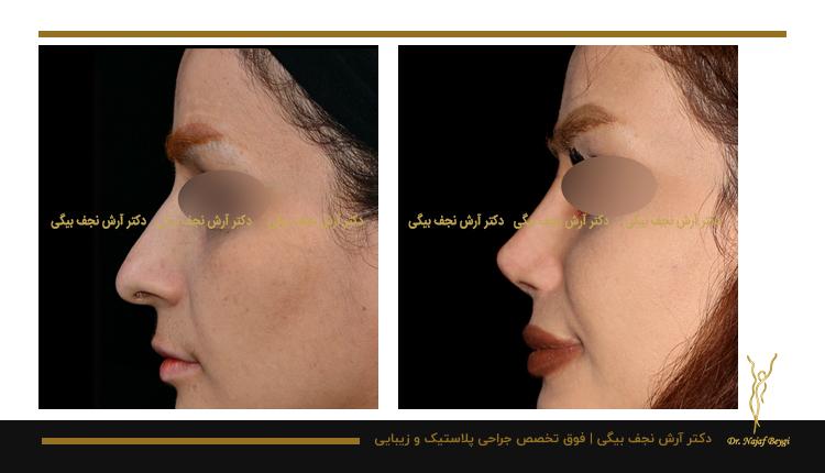 مدل بینی فانتزی نمونه جراحی بینی توسط دکتر آرش نجف بیگی 1