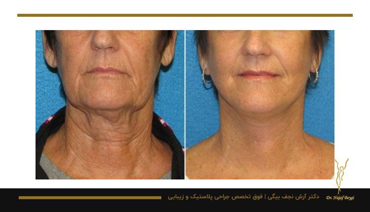 نمونه جراحی لیفت گردن