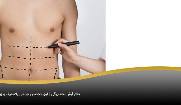 ورم پوست بعد از لیپوماتیک