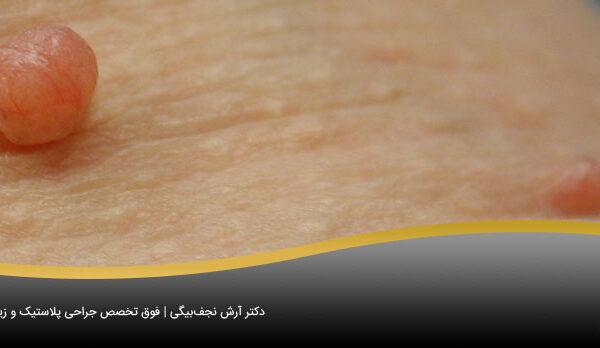 منگوله های پوستی و درمان آنها