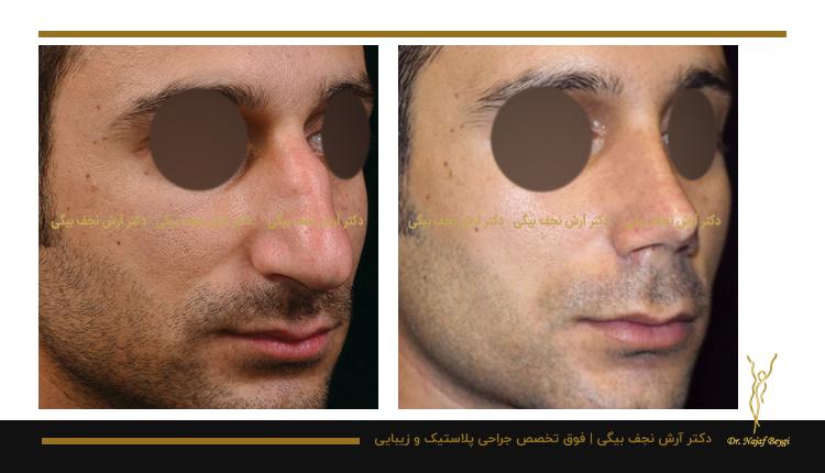 مدل بینی فانتزی نمونه جراحی بینی توسط دکتر آرش نجف بیگی 4