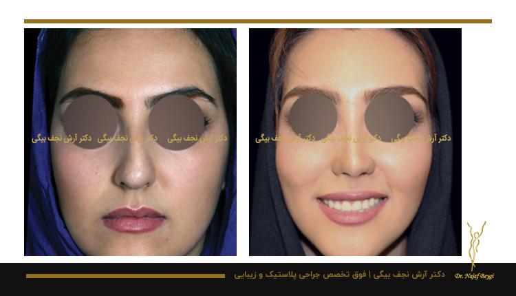 مدل بینی فانتزی نمونه جراحی بینی توسط دکتر آرش نجف بیگی 5