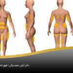 بدن فرد نیازمند به عمل پیکر تراشی به صورت شماتیک