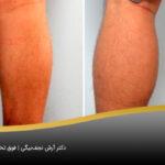 نمونه قبل و بعد تزریق چربی برای زانوهای پرانتزی