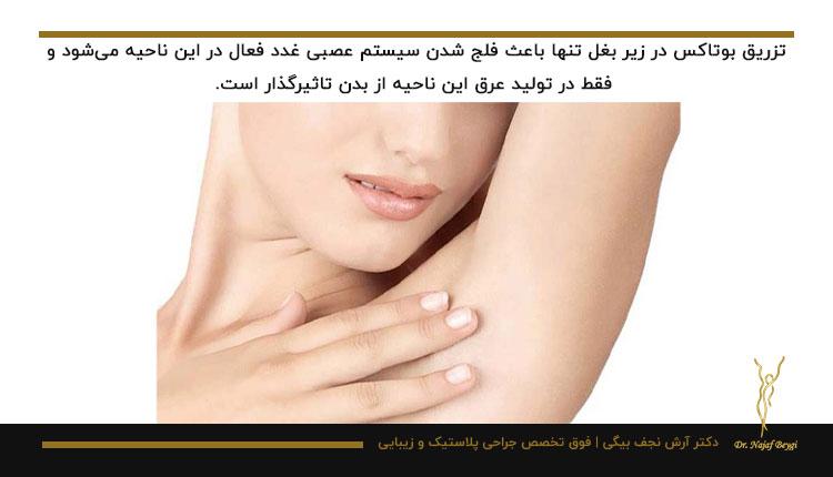 تزریق بوتاکس به زیر بغل فقط در همان ناحیه اثر میگذارد