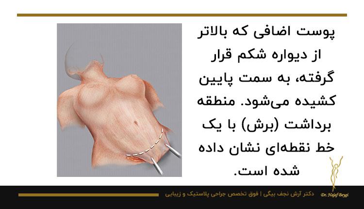 مراحل جراحی محدود ابدومینوپلاستی