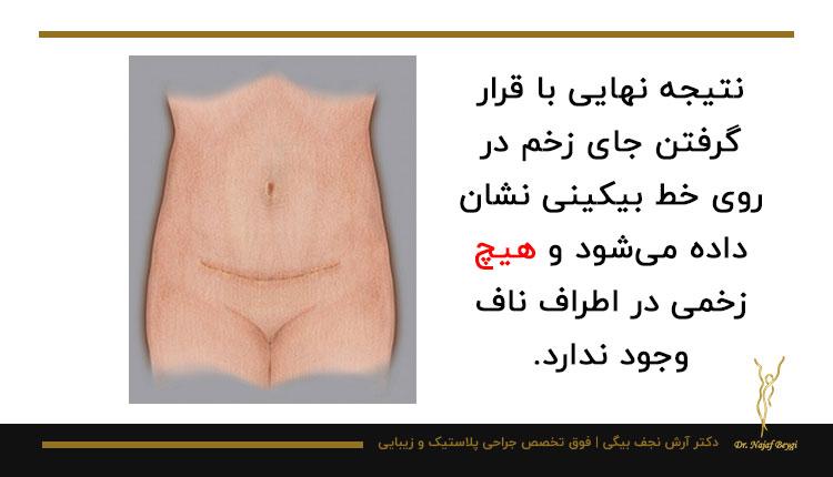 جراحی زیبایی محدود شکم