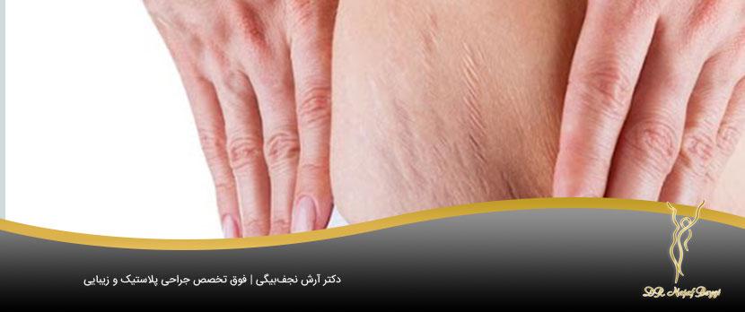 از بین بردن سلولیت های بدن