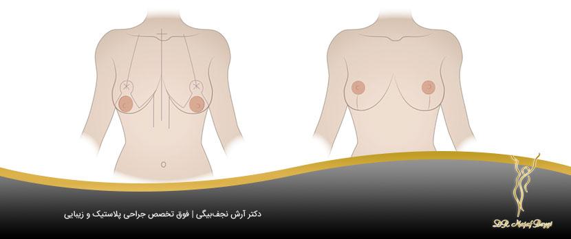 جلوگیری از افتادگی سینه با جراحی