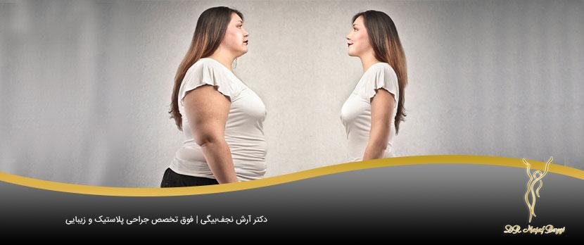 جراحی زیبایی اندام