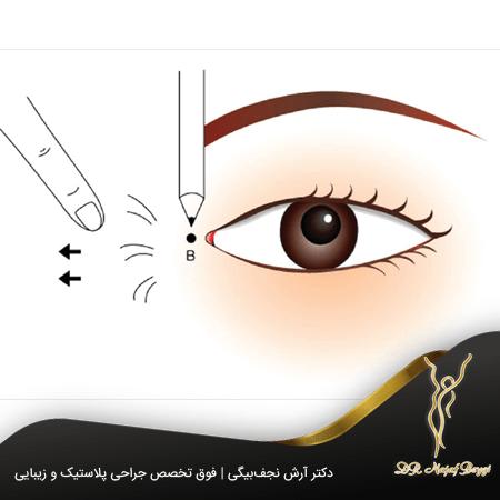 جراحی اپی کانتال چشم