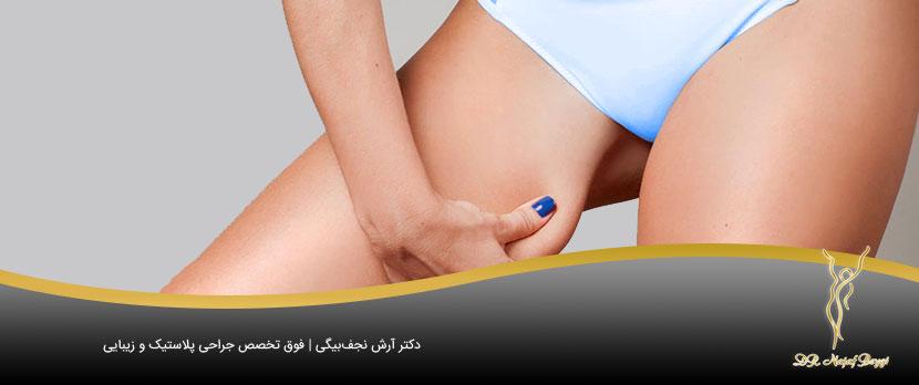 لاغر کردن ران هی چاق با جراحی لاغری ران